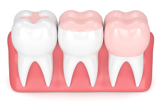 Dentiste Lagord